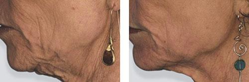 efekt przed i po zabiegu usunięcia zmarszczek laserem frakcyjnym na brodzie
