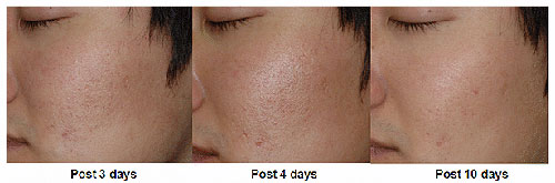 Efekt zabiegu usunięcia blizn laserem frakcyjnym po 3, 4 i 10 dniach