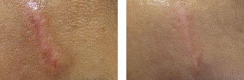 Skóra  przed i po zabiegu usunięcia blizny