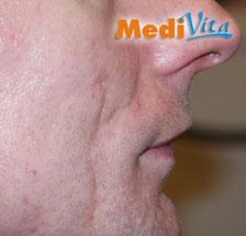prawa strona twarzy przed zabiegiem usunięcia blizn