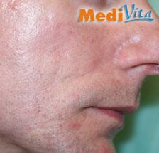 prawa strona twarzy po 2 zabiegu usnięcia blizn
