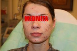Twarz kobiety przed wykonanym zabiegiem usunięcia blizn