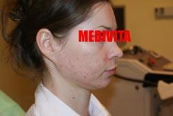 Policzek kobiety po 2 zabiegach usunięcia blizn