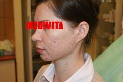 policzek kobiety po dwóch zabiegach usunięcia blizn