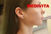 policzek kobiety po 3 zabiegach usunięcia blizn