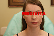 Twarz kobiety po 3 zabiegach usunięcia blizn