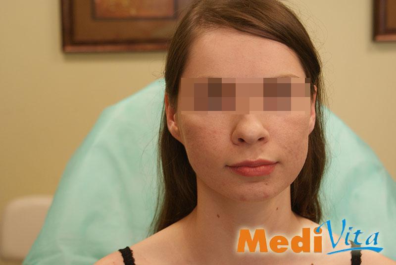 twarz po 3 zabiegach usunięcia blizn