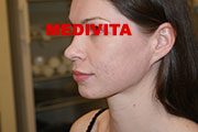 policzek kobiety po trzech zabiegach usunięcia blizn