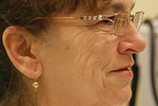 twarz kobiety przed zabiegiem usunięcia zmarszczek