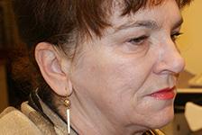 twarz kobiety po zabiegu usunięcia zmarszczek