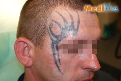 Przed zabiegiem laserowego usunięcia tatuażu na twarzy