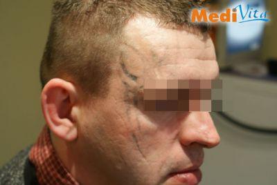 Po zabiegu laserowego usunięcia tatuażu na twarzy