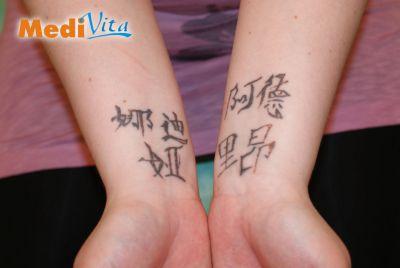 Przed zabiegiem laserowego usunięcia tatuażu na rękach