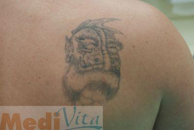 Przed zabiegiem laserowego usuwania tatuażu