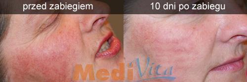 twarz pacjentki przed i 10 dni po zabiegu fotoodmładzania skóry
