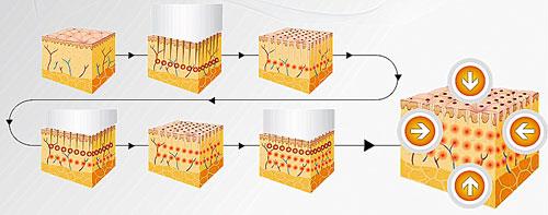 schemat budowy przestrzennej struktury punktów koagulacji