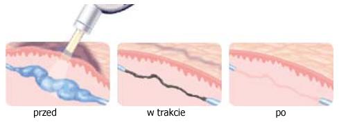 wizualizacja przebiegu laserowego usuwania naczynek